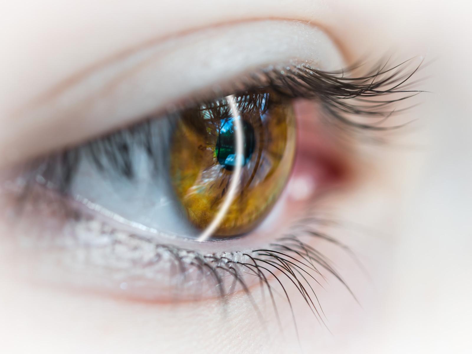 malattie della cornea