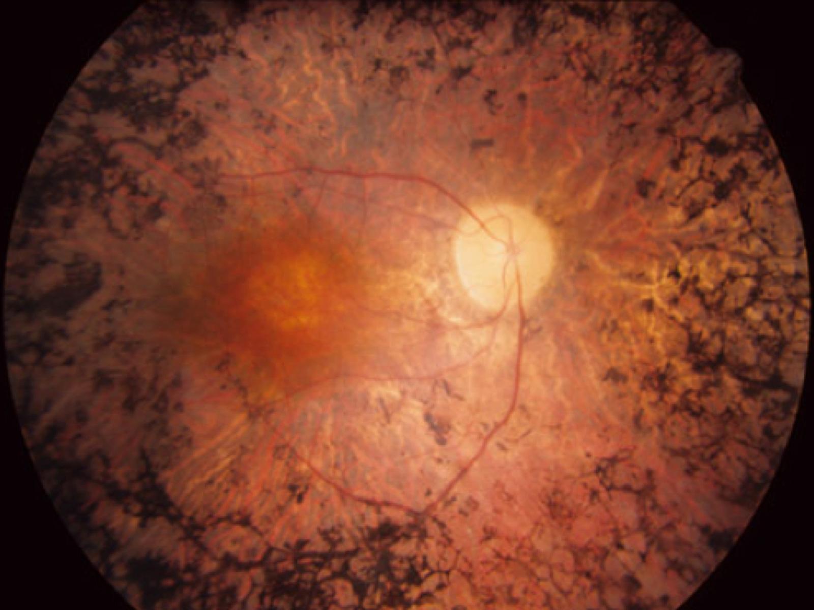 malattie della retina